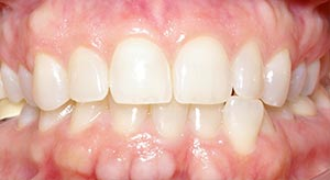 Before & After - McDonald Orthodontics