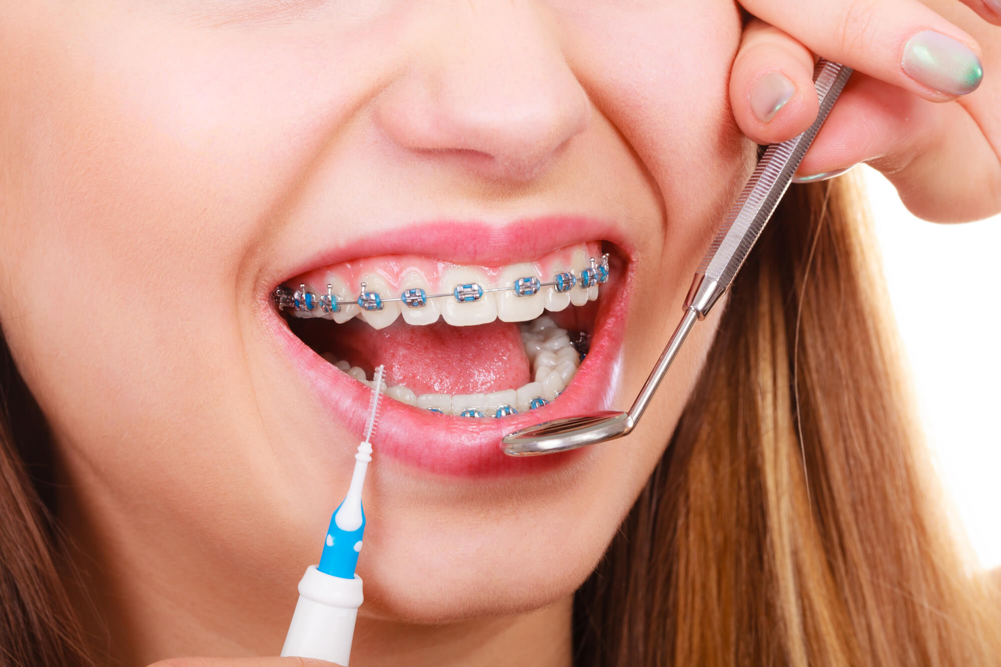 The Importance of Regular Braces Appointments - McDonald Orthodontics
