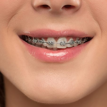 beautiful-young-woman-with-teeth-braces-37W5NCX