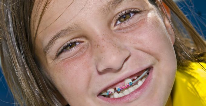 smiling girl with braces on her top teeth