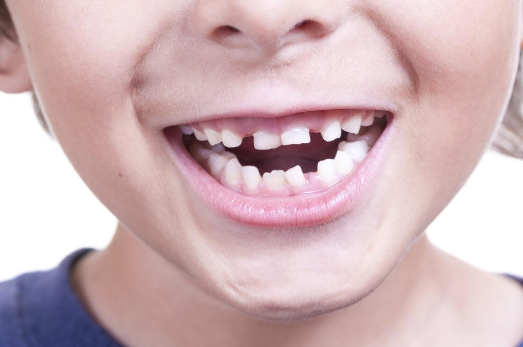 close up of child's smile