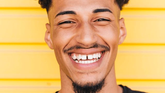 A young adult's smile has noticeable gap teeth